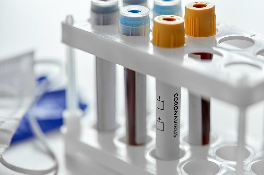 beakers with coronavirus blood test in holder